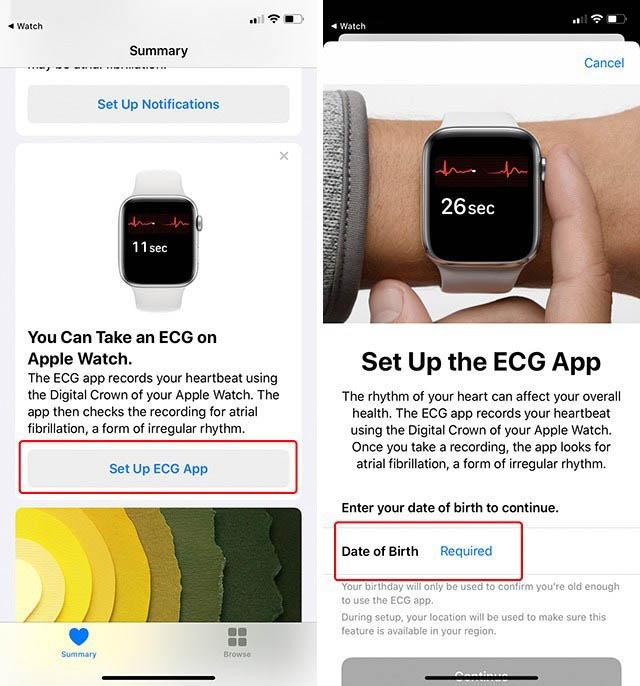 Как эффективно использовать функцию ЭКГ Apple Watch